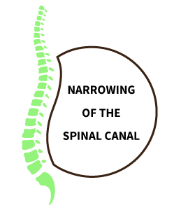 Narrowing of the spinal cord causing sciatica