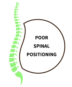 Poor spinal positioning resulting in sciatica