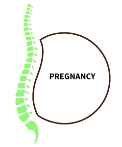 Pregnancy can cause sciatica pain